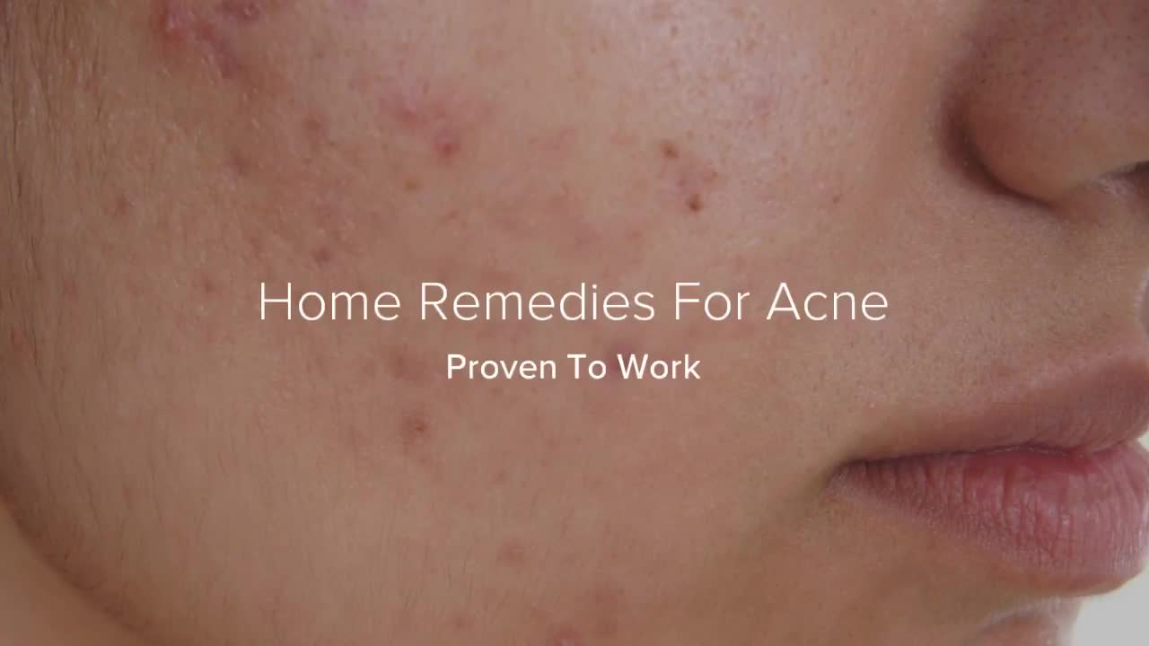 Simple Acne Treatment Proven To Work