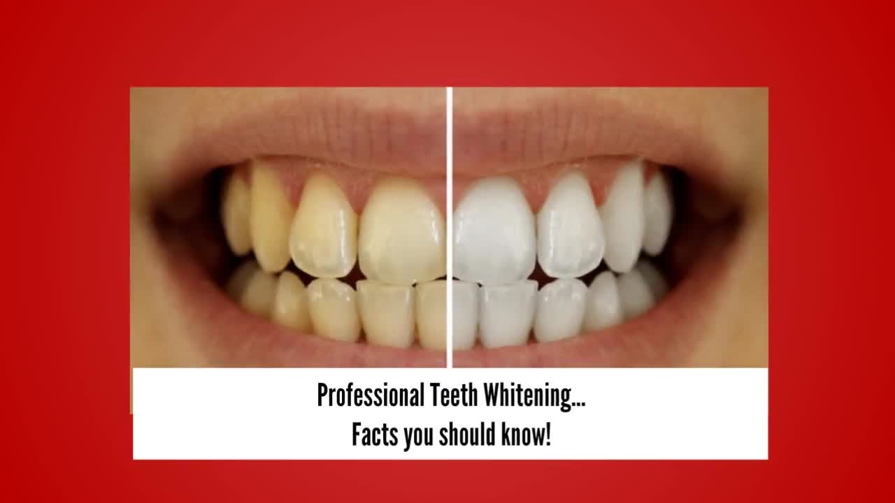 Professional teeth cleaning facts
