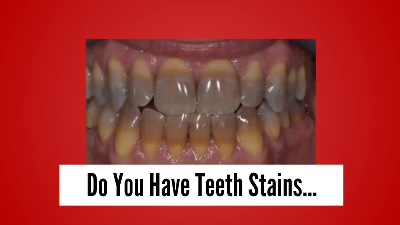 3 proven teeth stain home remedies